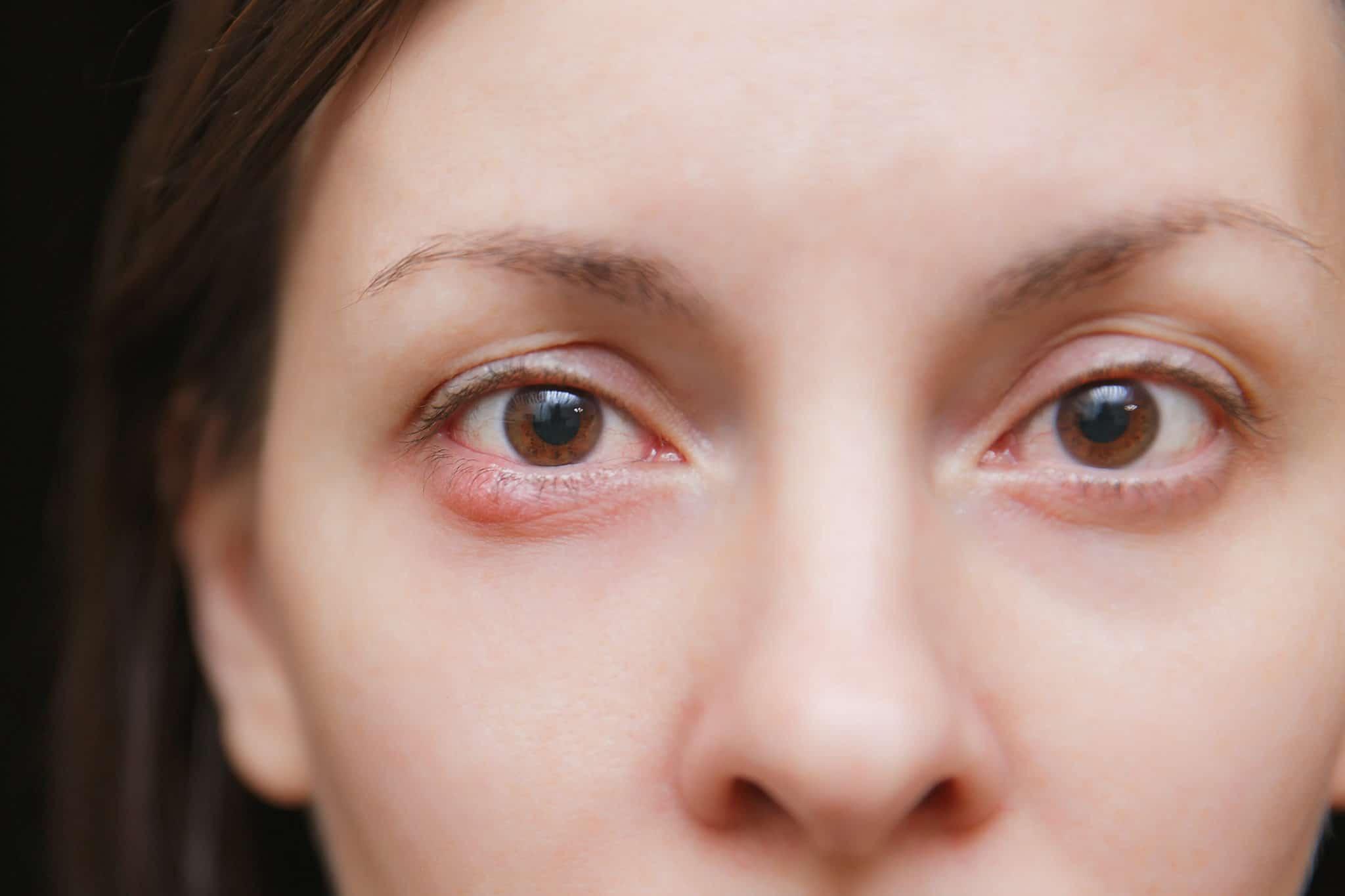 diabetic retinopathy | Jacksonville FL