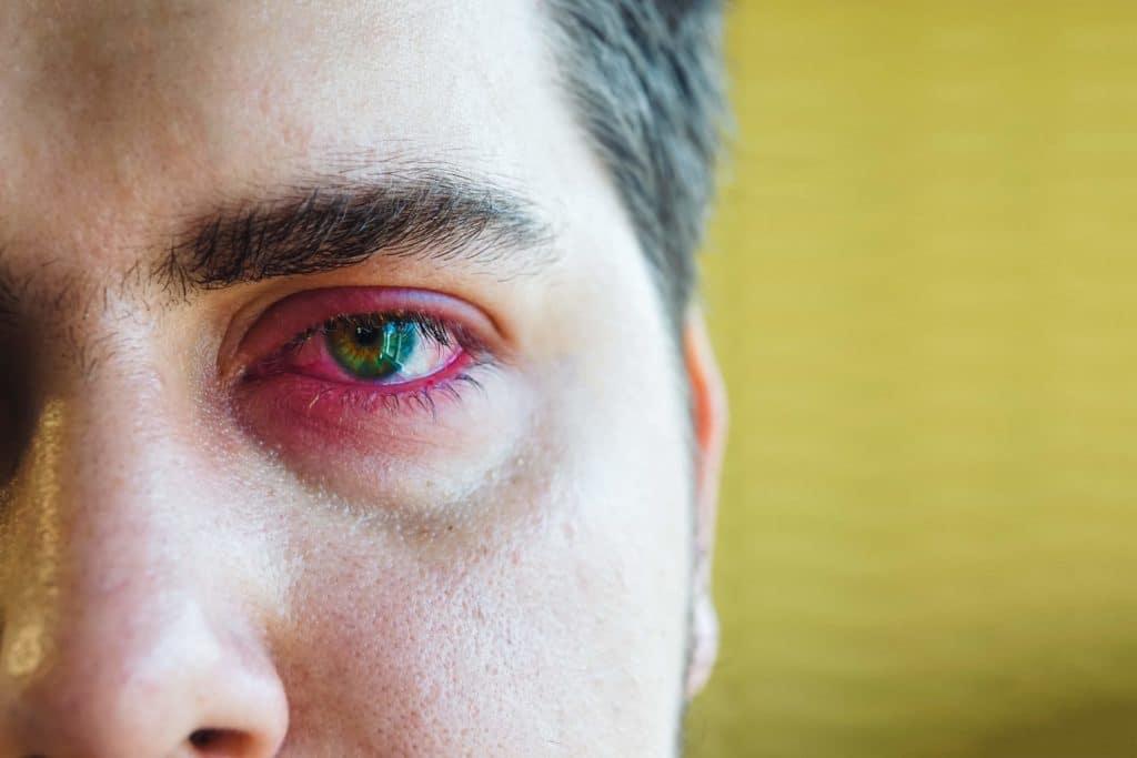 Blepharitis Jacksonville FL | IBlephex Treatment