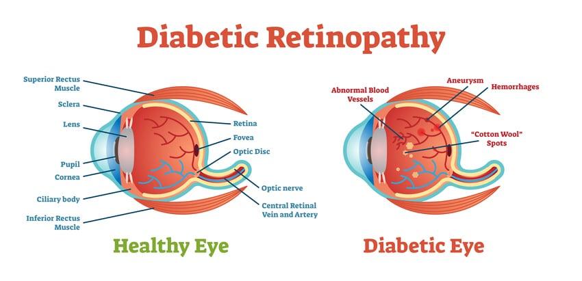 Diabetic Retinopathy Jacksonville FL